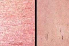 1_lime-pink